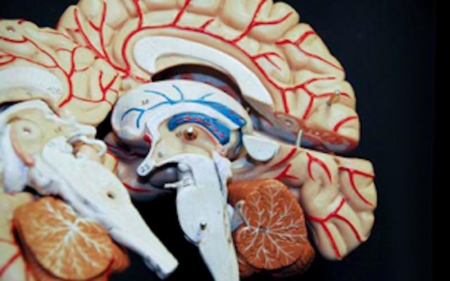 Con implante electrónico cerebral mitigan el alzheimer