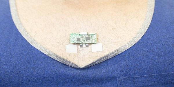 Este wearable monitorea tu salud en tiempo real
