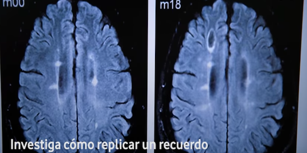 Prótesis cerebrales para recuperar y aumentar la memoria